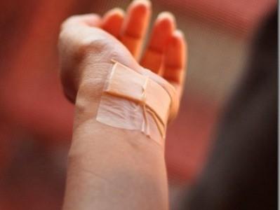 Երևանում ինքնասպանության փորձ է կանխվել