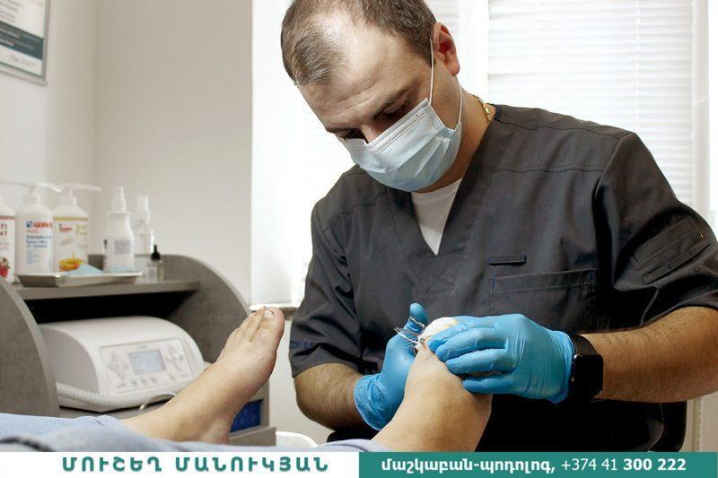 Առողջ ու գեղեցիկ եղունգներ ունենալու համար դիմեք  մաշկաբան-պոդոլոգի